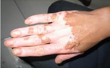 手部白癜风有什么症状呢