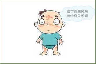 白癜风的出现会给患者带来哪些症状