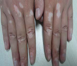 肢端型白癜风常见诱因有哪些