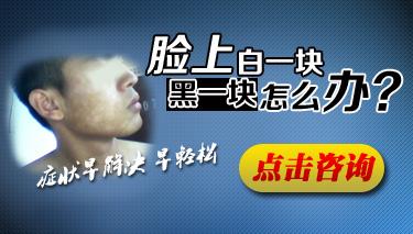 白癜风患者愈后康复流程